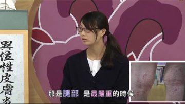 【走近韓醫】異位性皮膚炎