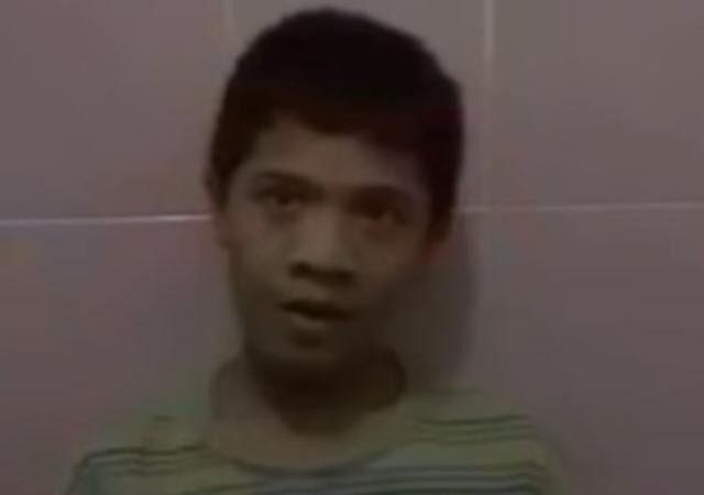 奇!印尼少年會下蛋  腹中蛋形X光片清晰可見