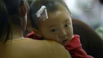 流感病毒攻脑 广州5童坏死性脑炎