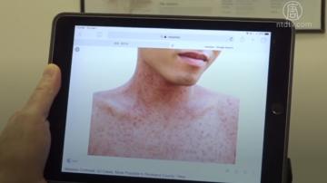 高傳染性麻疹本地出現7例 醫生談麻疹