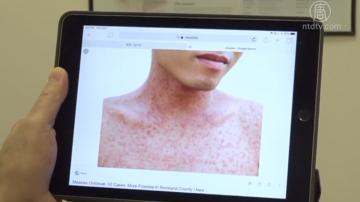 舊金山發現一麻疹患者 五年來首例