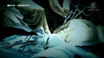 台监察院纠正卫福部 境外器官移植登录